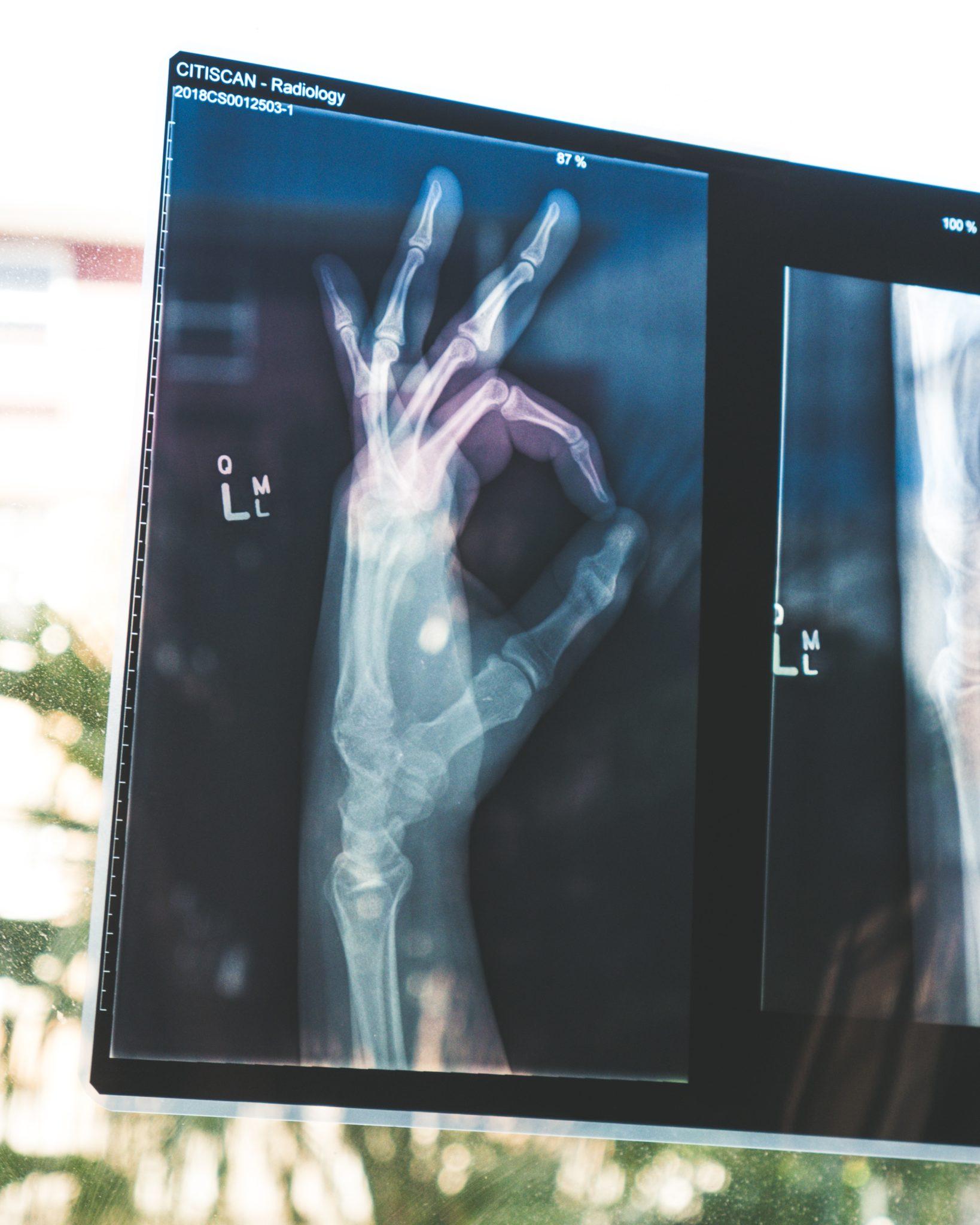 Röntgenbild einer Hand